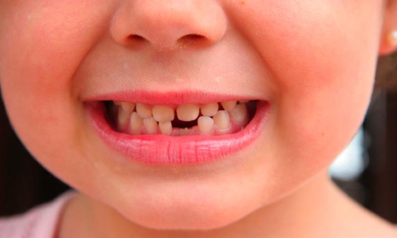 SAVAITGALIO KONKURSAS: Papasakok, kas ir kaip nusineša dantukus Tavo namuose
