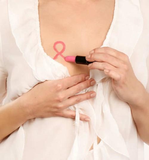 Krūties vėžio užkluptas moteris nuo chemoterapijos gelbsti genetinis molekulinis tyrimas