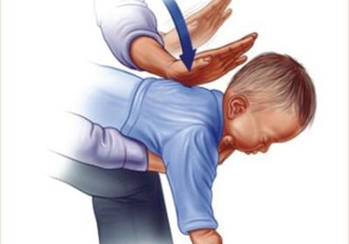Pirmoji pagalba užspringus vaikui: vertingi patarimai