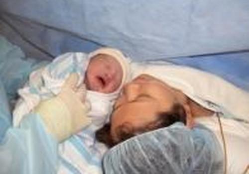 Ar turėjote operaciją po gimdymo?
