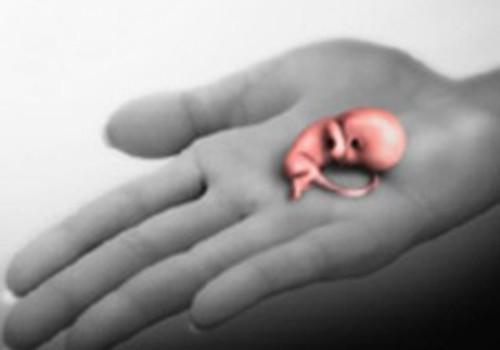 Nesivystantis nėštumas: priežastys ir pasekmės