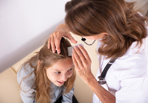 Utėlės nesirenka, kieno galvoje įsikurti: vaistininkė pataria, kaip jų saugotis ir atsikratyti