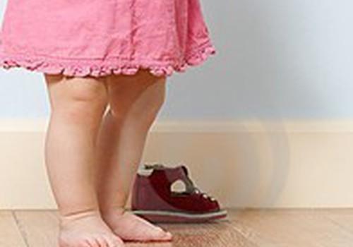 Pirmieji batukai: kineziterapeutės patarimai