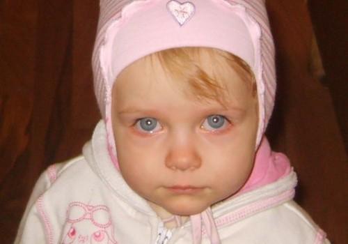 Dukrytė tapo jautri: kuo jai padėti?
