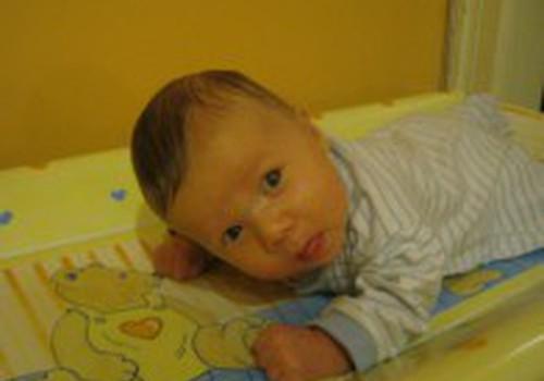 Kai kūdikis riečia galvytę tik į vieną pusę